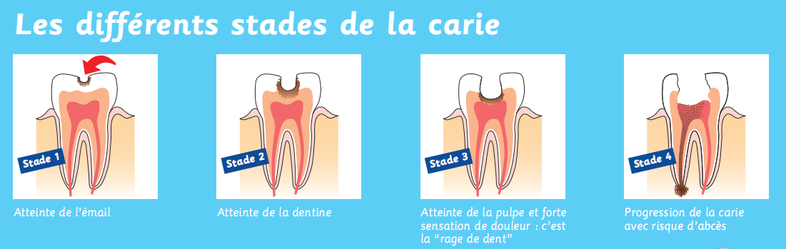 caries-evolution